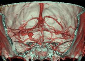 (三次元立体画像)動脈瘤