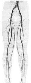 下肢の静脈