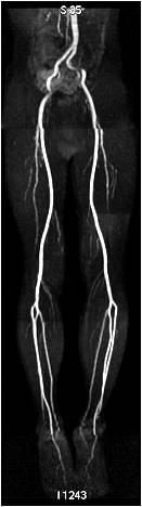 下肢の動脈