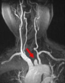 頭頚部造影MRA(左総頸動脈閉塞)
